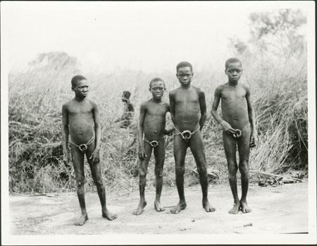 before circumcision penis Boy